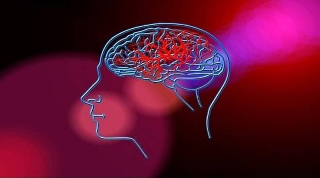 Giornata Mondiale contro l'Ictus Cerebrale