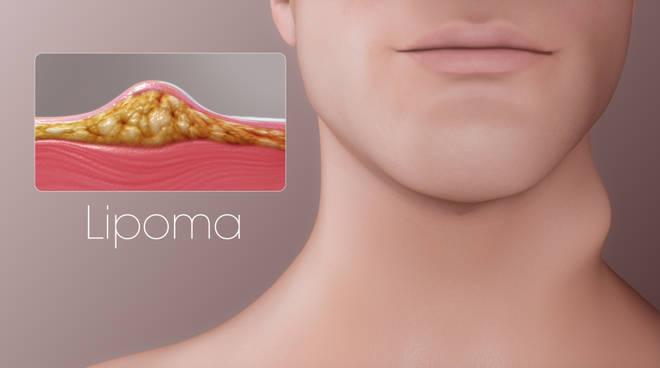 come fanno i medici a rimuovere i tumori grassi