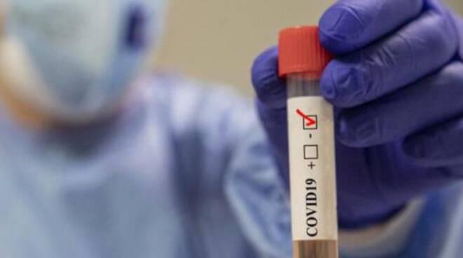 coronavirus negativo