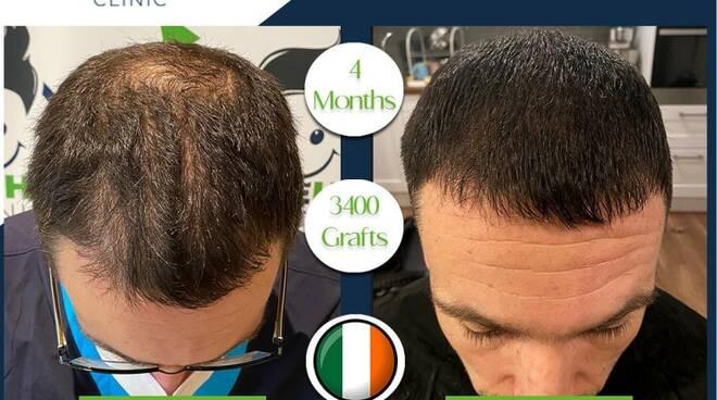 Tutto quello che devi sapere sul trapianto di capelli